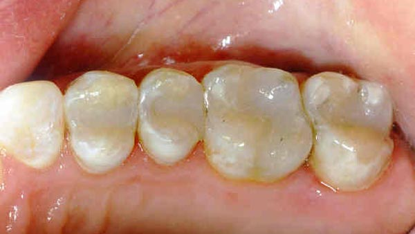Dental before & after photos - Corbet Locke DDS - Woodway, TX